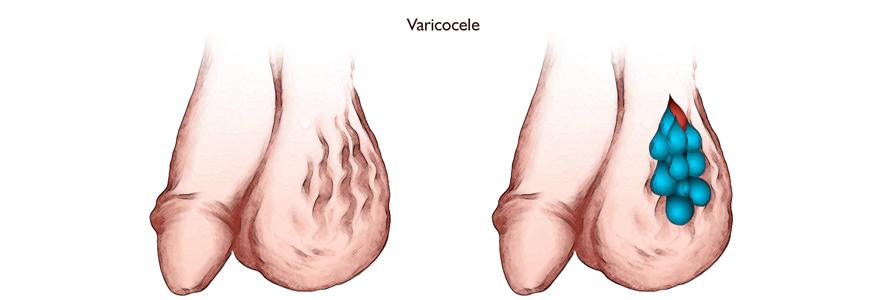 Krampfadern der Hoden und Unfruchtbarkeit